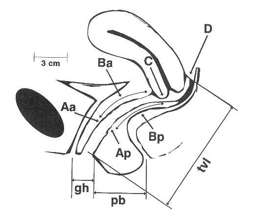 Pelvic Organ Prolapse Uterine Prolapse Grades